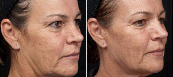 Thermage® Skin Tightening - Forever Young Edmonton